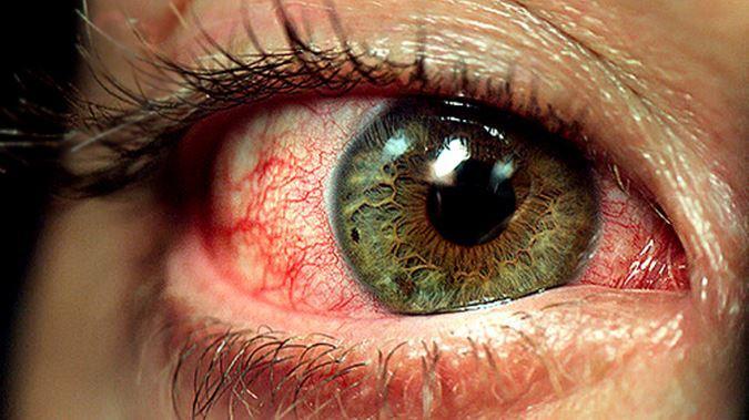 73b967077c9 Crohns Disease Eyes   Can Crohn s Disease affect your eyes